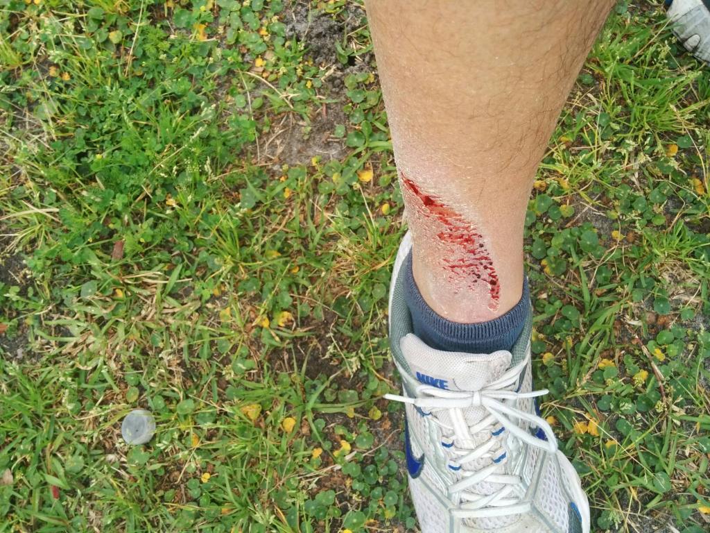 cut leg